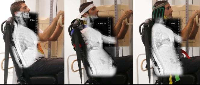 Imagen 2 - estudio radiologico